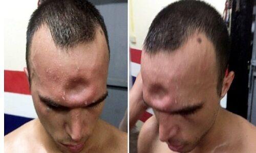 ویدیو| ضربه سنگین ورزشکار «موی تای» و گود برداشتن پیشانی حریف!