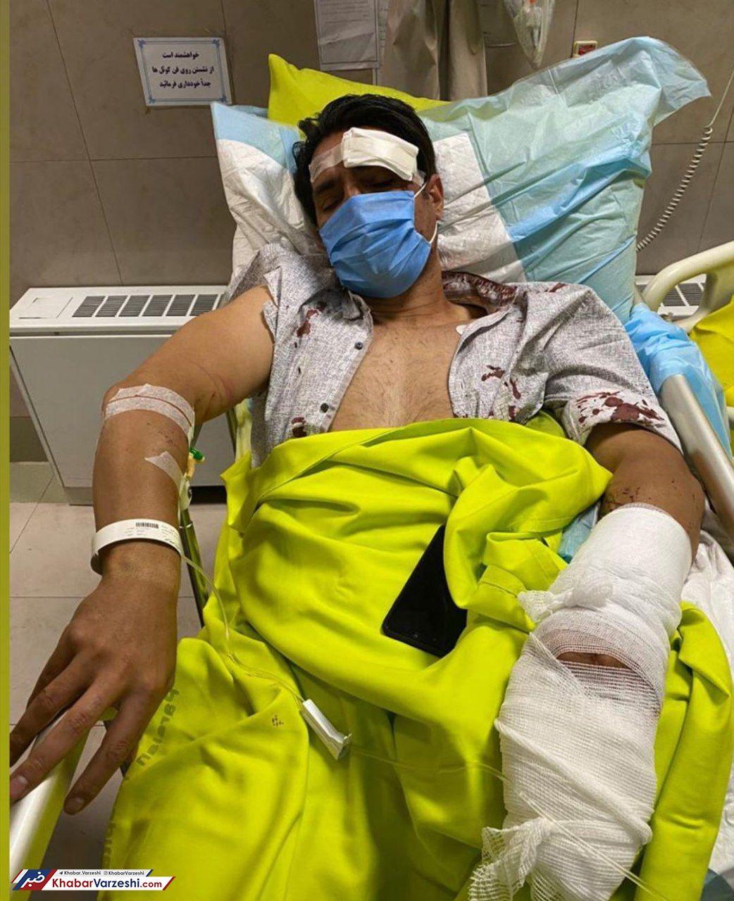 عکس| جراحت شدید کاپیتان پیشین استقلال پس از تصادف
