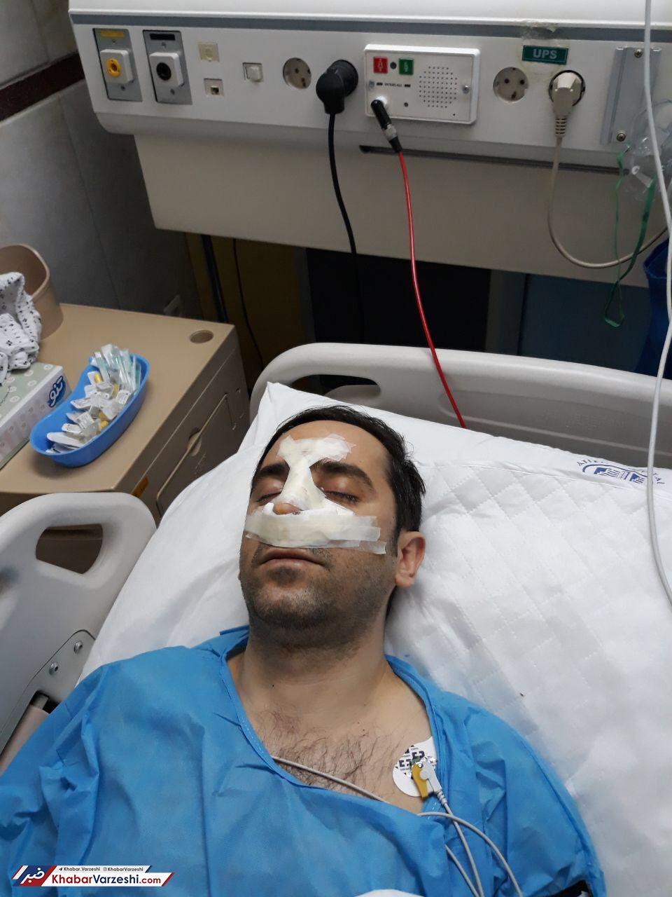 عکس| معاون مضروب باشگاه استقلال جراحی شد
